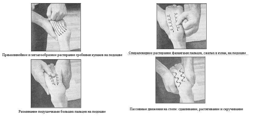 Красиков массаж плоскостопие